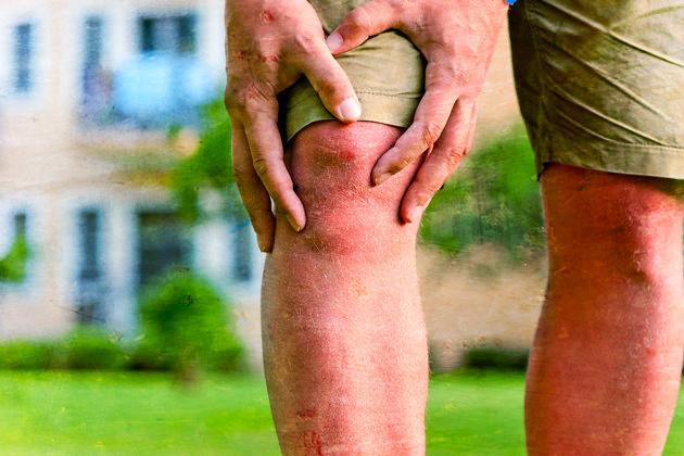 u-podrostka-xrustit-koleno