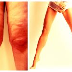 Зачастую жировые отложения локализуются на коленях ног, доставляя женщинам дискомфорт