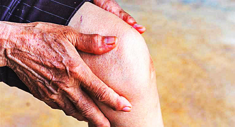 Артроз коленного сустава вызывает сильные боли