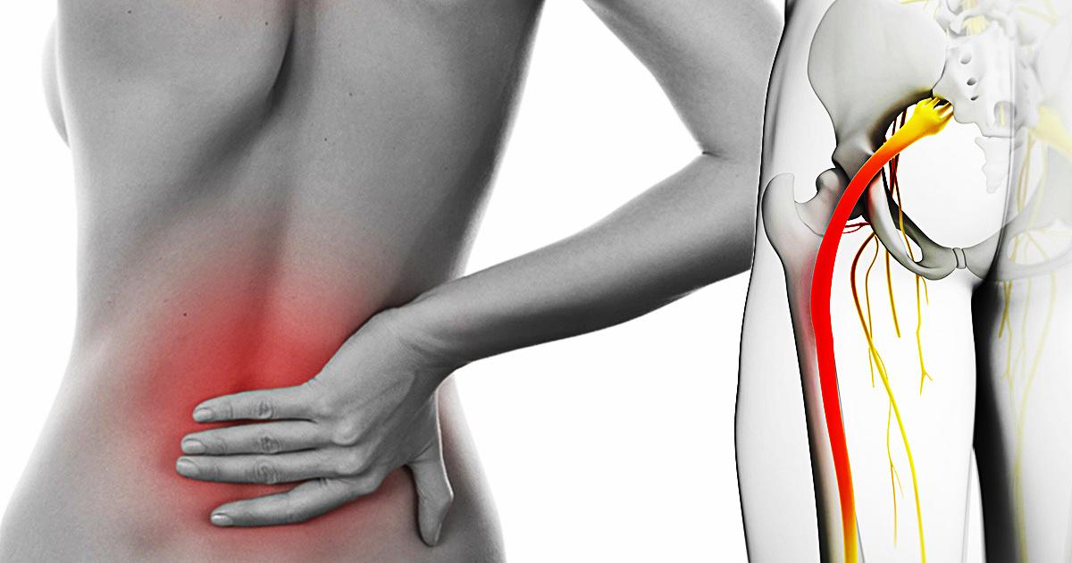 Больно ли заниматься сексом при воспалении седалищного нерва