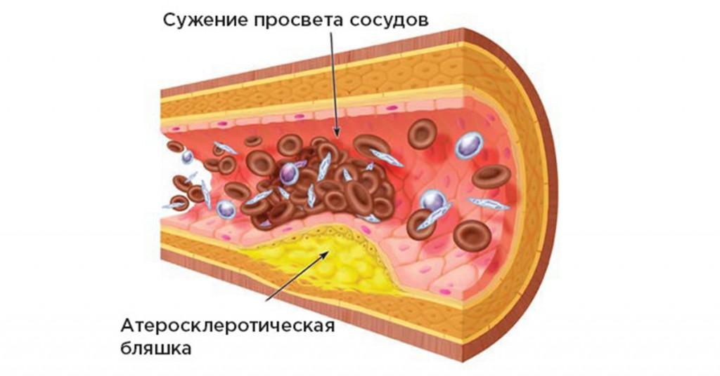 holesterin