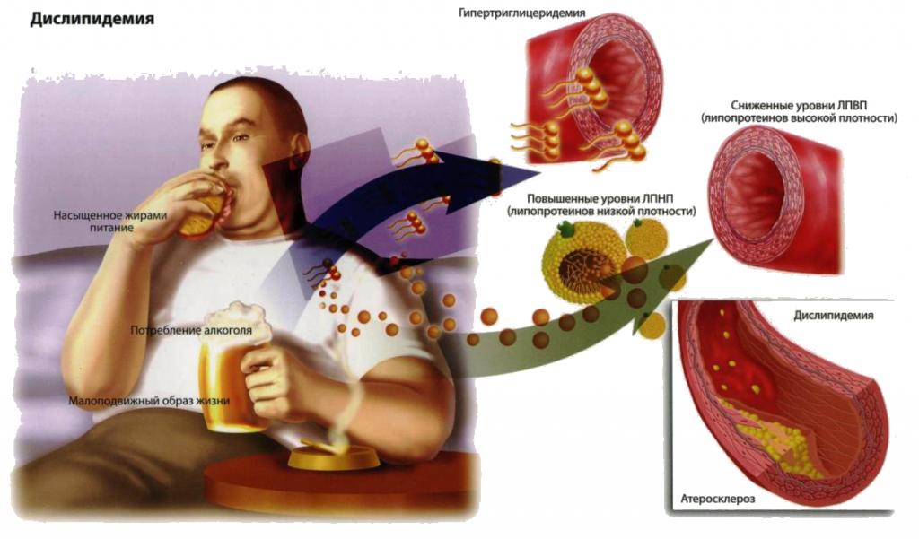 norma-holesterina-v-krovi-u-muzhchin