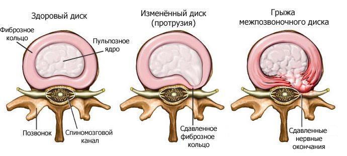 Симптомы приступа шейного остеохондроза как снять